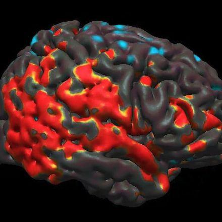 Trump's Legacy: Damaged Brains