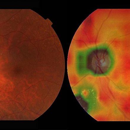 Medical AI may be better at spotting eye disease than real doctors