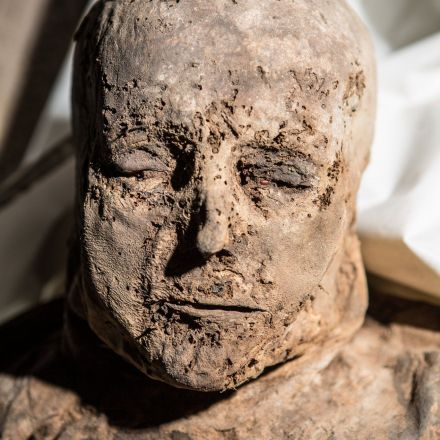The Mummies' Medical Secrets? They're Perfectly Preserved.