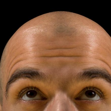 The new growth in hair loss research
