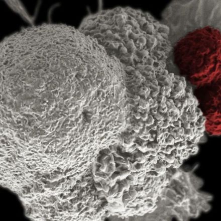 FDA approves a game-changing treatment for blood cancer