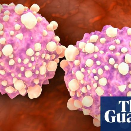 New blood test can detect 50 types of cancer