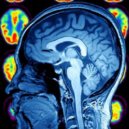 Could Psychopaths Have a Cerebral Advantage ?