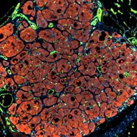 Human liver cells seeded in mouse expands 50-fold to functional organoid