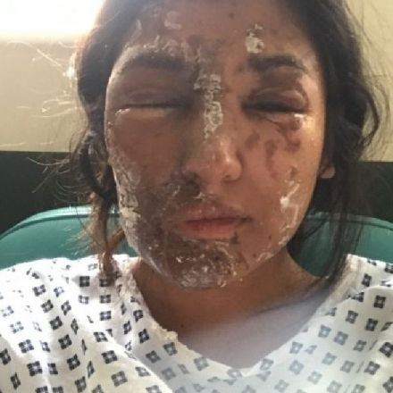 Woman suffers 'life changing' injuries after acid attack on her 21st birthday