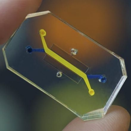 Human Organs-on-Chips - Microchips lined by living human cells that could revolutionize drug development