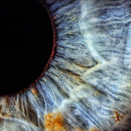 Wisdom tooth stem cells could point to cure for corneal blindness