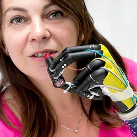 Bionic Hands Let Amputees Feel and Grip