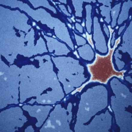 Wiping Out the Brain's Retired Cells Prevents a Hallmark of Alzheimer's