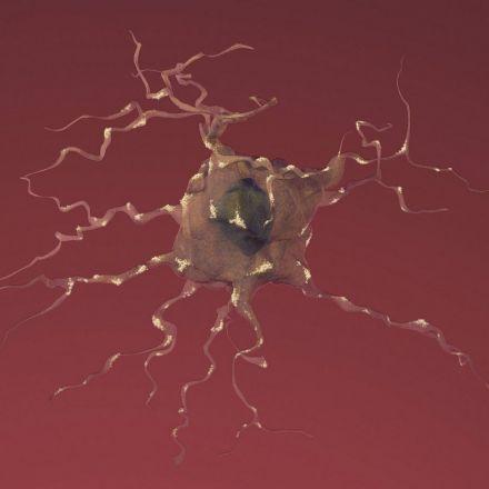 Molecular and neuroimaging biomarkers of Alzheimer's disease at #SfN16   PLOS Neuroscience Community
