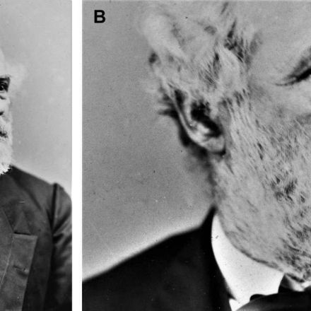 The Key to Robert E. Lee's Puzzling Death Might Be Hidden in a Photo of His Earlobe