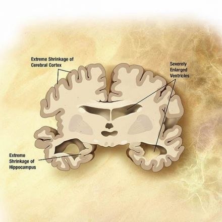 It May Be Possible to Restore Memory Function in Alzheimer's