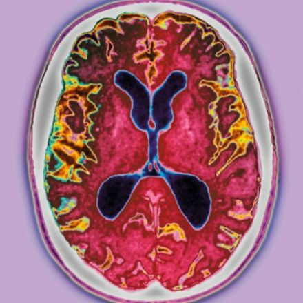 Stop Alzheimer's before it starts