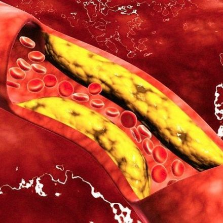 Drug 'melts away' fat inside arteries