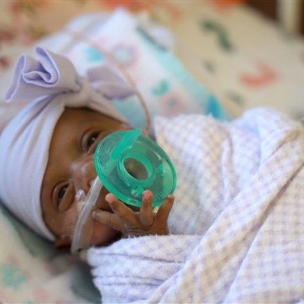World's smallest surviving baby born in San Diego