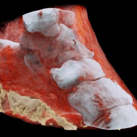 First-ever colour X-ray on a human
