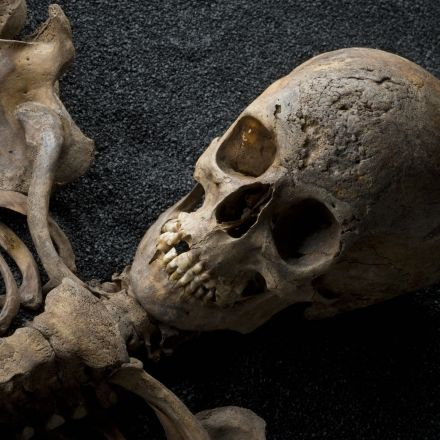 Evidence in the bones reveals rickets in Roman times