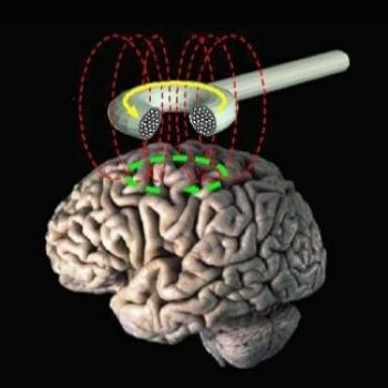 Brain Stimulation Could be the Depression Treatment We Need