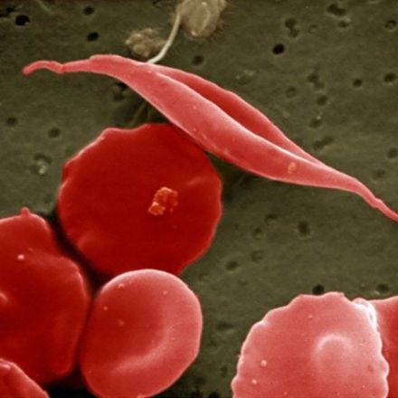 Gene therapy to fight a blood cancer succeeds in major study