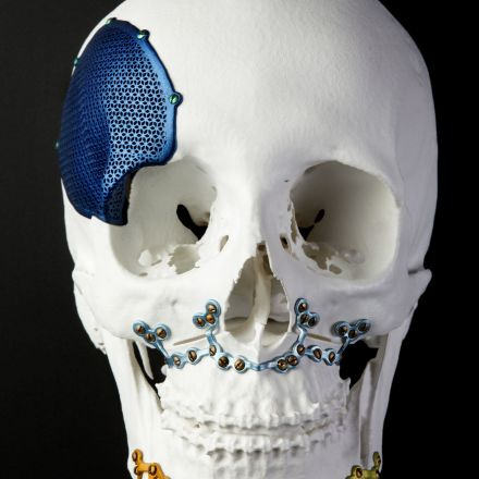 Bone Machine: 3D Printing Is Revolutionizing Plastic Surgery