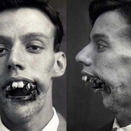 One of the First Persons to Benefit From Plastic Surgery During WWI