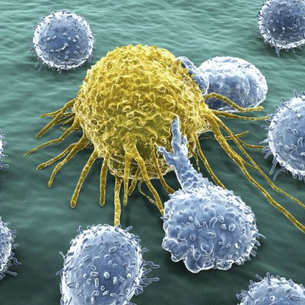 Breakthrough in understanding how cancer cells metastasize