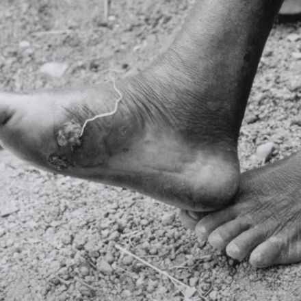 'Amazing' News About The Awful Guinea Worm